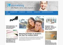 Home Bleaching – Informationen zum Zähne aufhellen